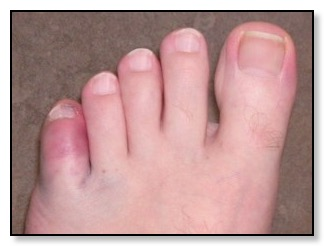 Broken Toe